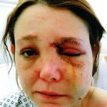 battered-pregnant-woman