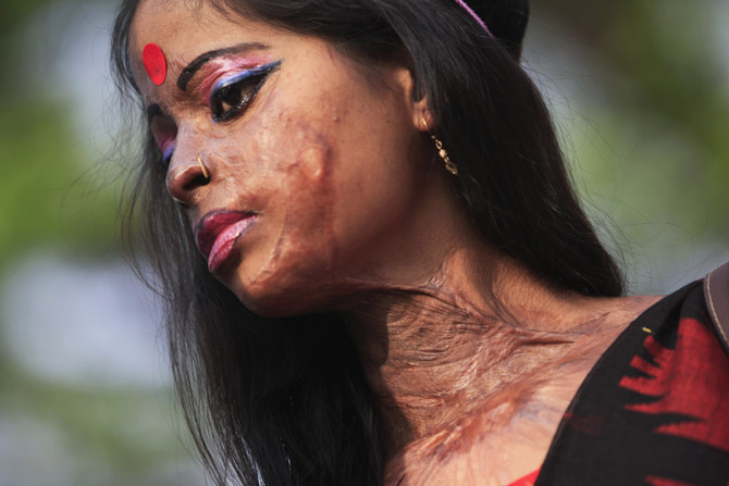 Neela was forced to marry when she was 12 years old. Her husband threw acid ...
